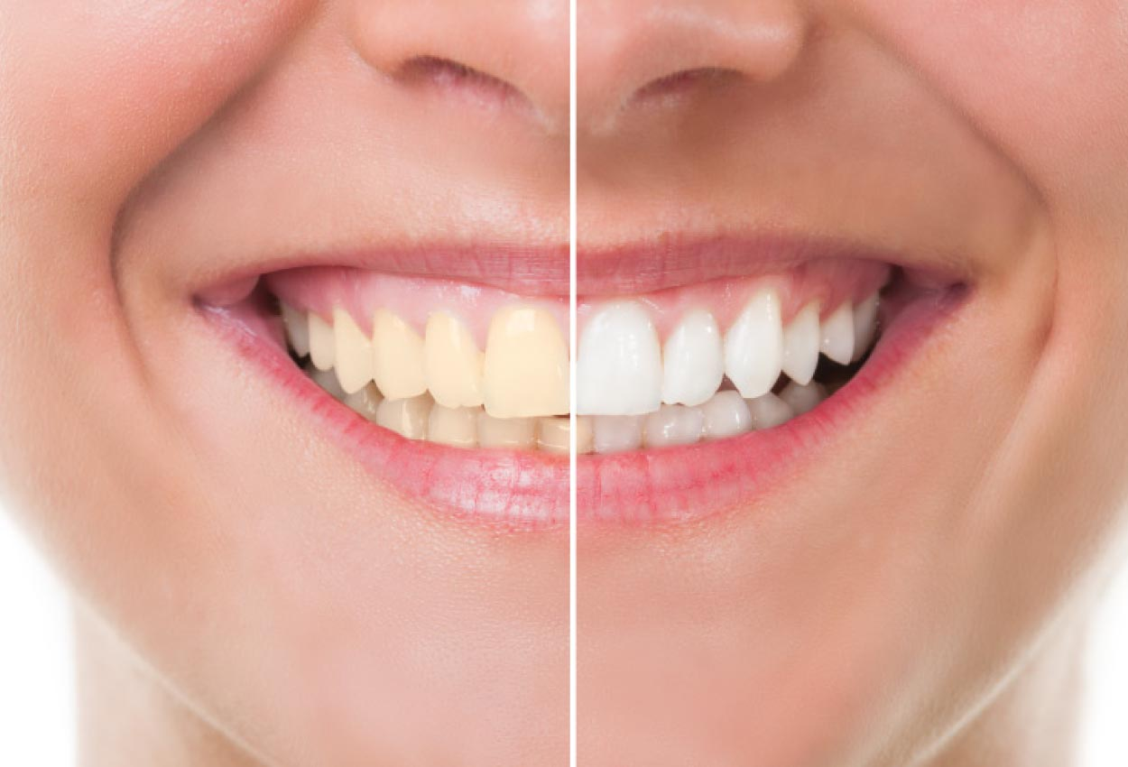 Close up of a smile with half showing the benefits of professional teeth whitening.